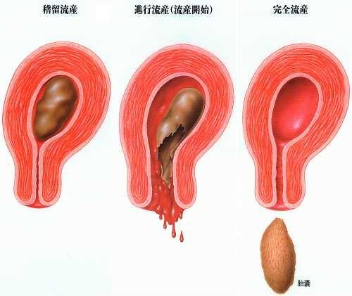 妊娠 初期 出血 原因